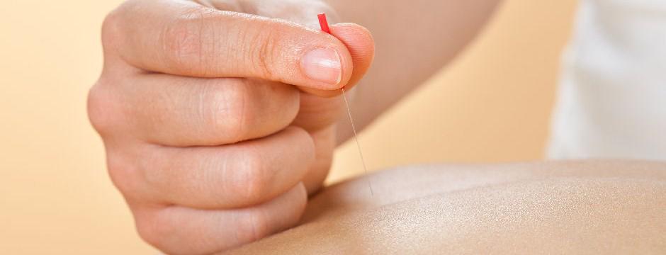 Dry-needling-