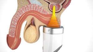 SWT 1 chronic-pelvic-pain-syndrome