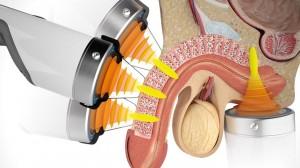 Shockwave 2 for erectile-dysfunction