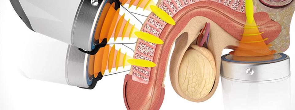 Shockwawe Therapy Erectile Dysfunction